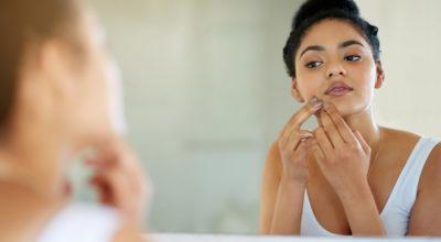 6 alimentos que podem causar acne (alguns você nem imagina)