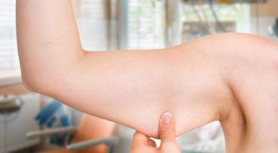 É possível perder gordura localizada em partes específicas do corpo?